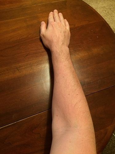 forearm